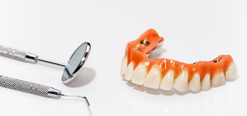 Implantate Menden