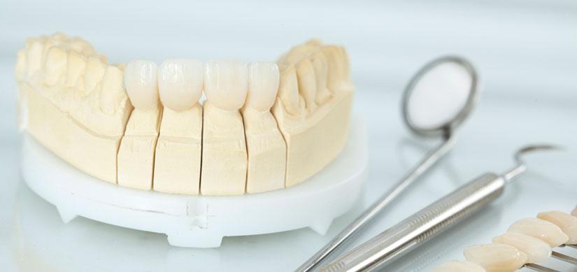 Zahnkronen Menden