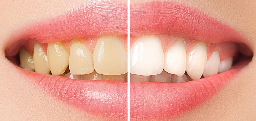 Bleaching Zähne Menden