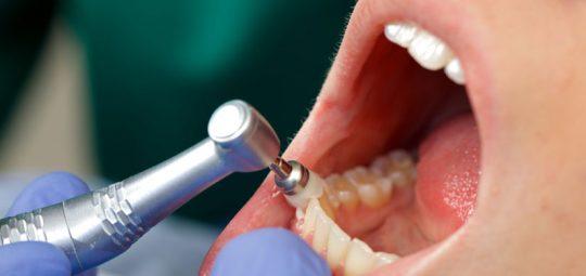 professionelle Zahnreinigung Menden